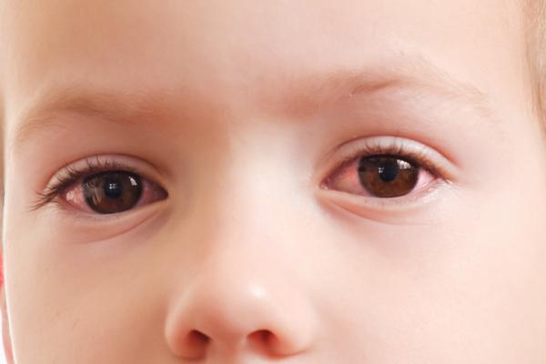 Mi bebé tiene un ojo irritado, ¿qué hago?