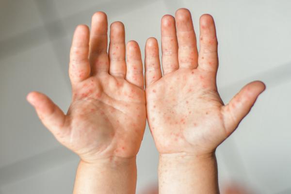 Sarpullido en bebés: causas y tratamiento - Enfermedad de mano, pie, boca
