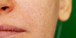 Cloasma gravídico: qué es, cuándo aparece y tratamiento